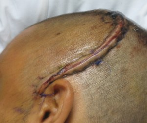 Football Player Head Injury
